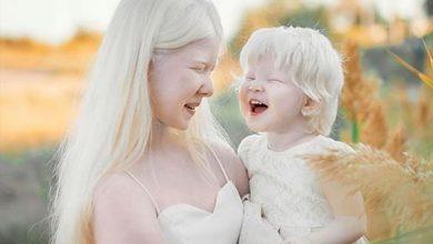 """Photo of Kazahstan: Albino sestre, poznate kao """"bijele princeze"""", u fokusu modnog svijeta"""